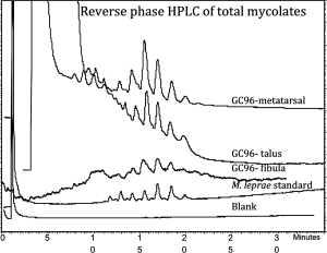Profile of the mycolic acids extracted from the indicated bones.