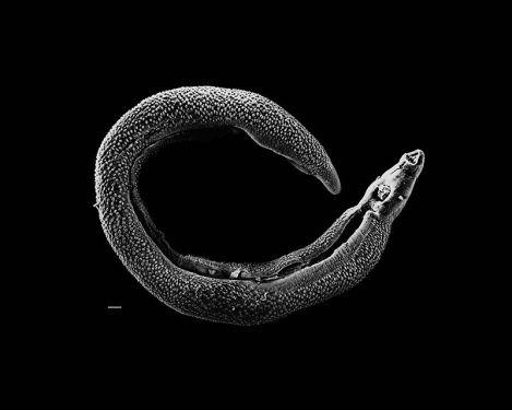 800px-Schistosoma_20041-300